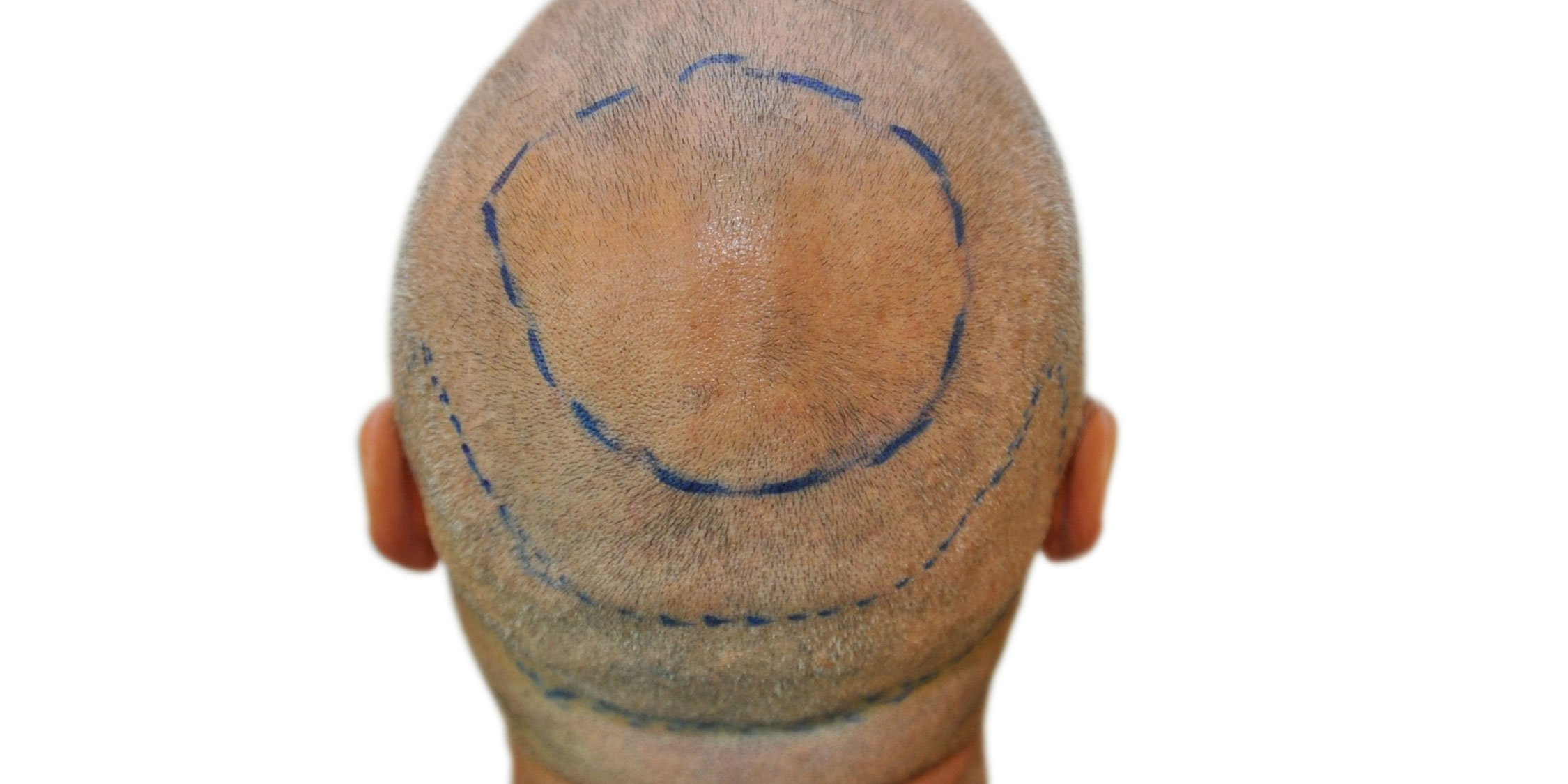 vademecum post hair transplant