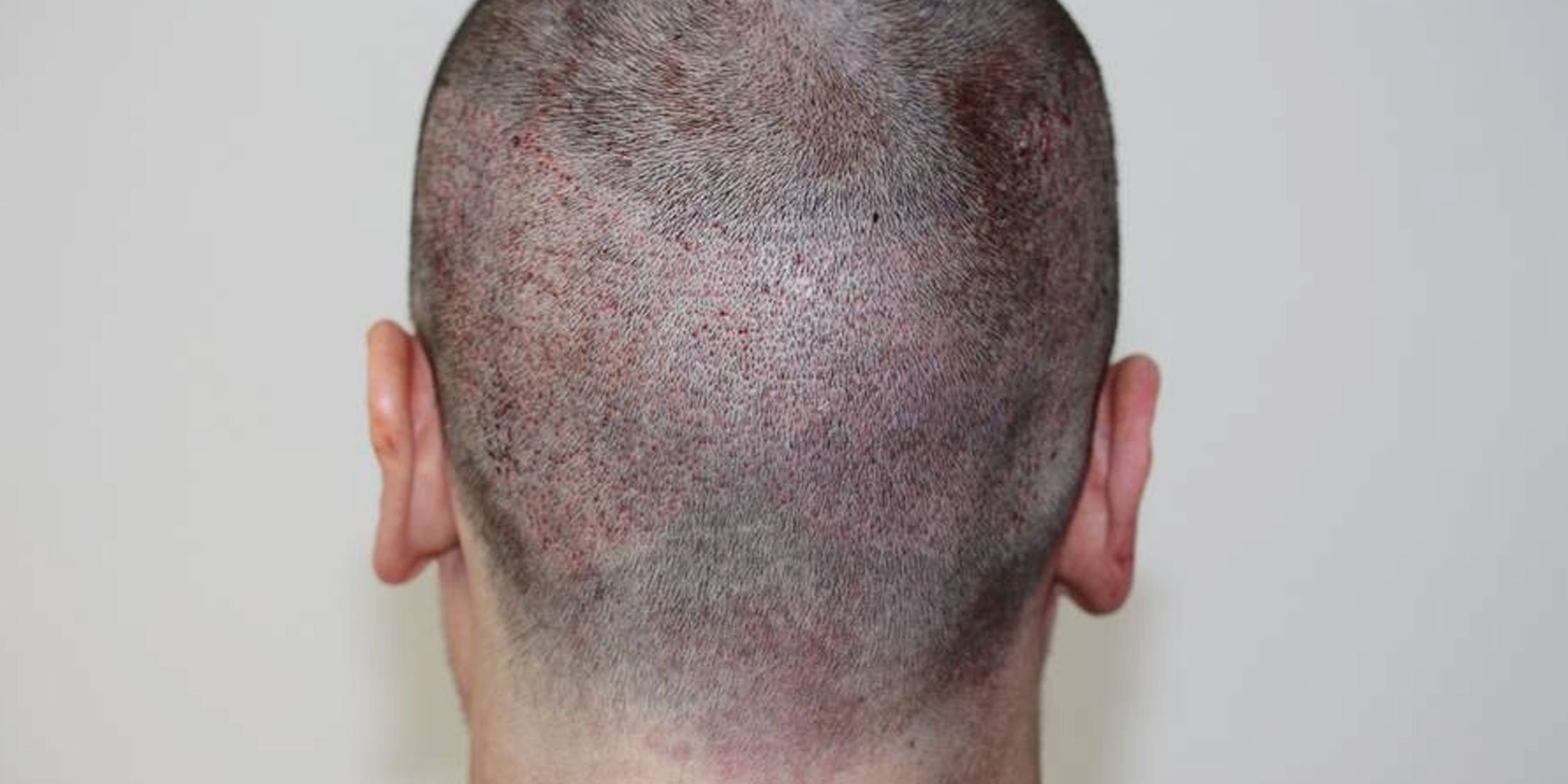 firstduty hair transplant